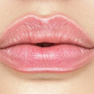 russian-lips-medissima-clinic